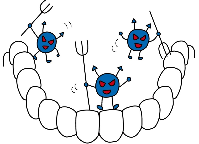 重度のむし歯にも対応